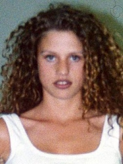Katie Price plastic surgery, Katie Price plastic surgery before after photos, Katie Price breast augmentation, Katie Price breast implants, Katie Price nose job, lip injection, botox, chemical peels