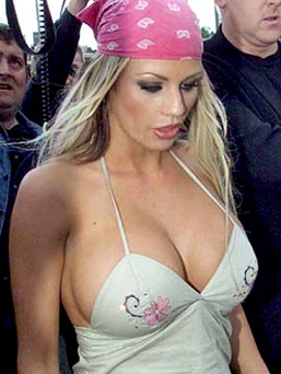 Katie Price plastic surgery, Katie Price plastic surgery before after photos, Katie Price breast augmentation, Katie Price breast implants, Katie Price nose job, lip injection, botox, chemical peels1