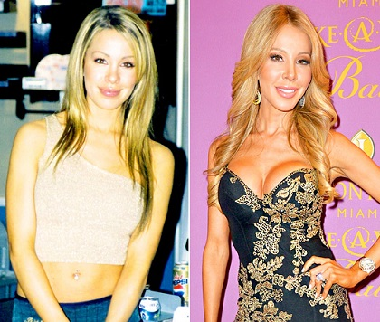 Lisa Hochstein plastic surgery, Lisa Hochstein plastic surgery before after photos, Lisa Hochstein breast augmentation, breast implants, nose job