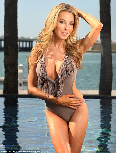Lisa Hochstein plastic surgery, Lisa Hochstein plastic surgery before after photos, Lisa Hochstein breast augmentation, breast implants, nose job1