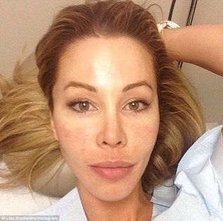 Lisa Hochstein plastic surgery, Lisa Hochstein plastic surgery before after photos, Lisa Hochstein breast augmentation, breast implants, nose job4
