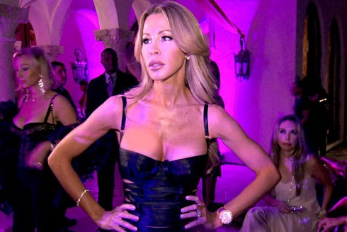 Lisa Hochstein plastic surgery, Lisa Hochstein plastic surgery before after photos, Lisa Hochstein breast augmentation, breast implants, nose job5