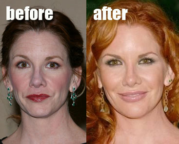 Melissa Gilbert plastic surgery, Melissa Gilbert plastic surgery before after photos, Melissa Gilbert botox, Melissa Gilbert nose job