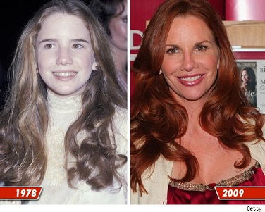 Melissa Gilbert plastic surgery, Melissa Gilbert plastic surgery before after photos, Melissa Gilbert botox, Melissa Gilbert nose job1