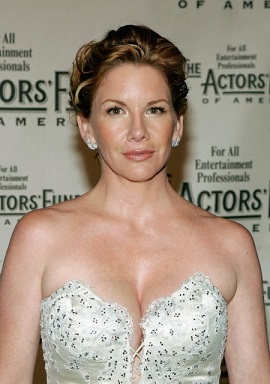 Melissa Gilbert plastic surgery, Melissa Gilbert plastic surgery before after photos, Melissa Gilbert botox, Melissa Gilbert nose job2