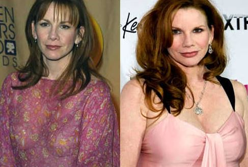 Melissa Gilbert plastic surgery, Melissa Gilbert plastic surgery before after photos, Melissa Gilbert botox, Melissa Gilbert nose job6