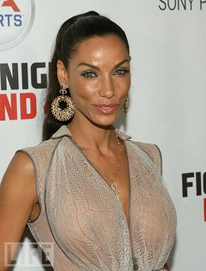 Nicole Mitchell Murphy Plastic Surgery, Nicole Mitchell Murphy Plastic Surgery before after photos, breast augmentation, breast implants, butt augmentation, nose job, botox, facelift7