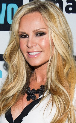 Tamra Barney plastic surgery, Tamra Barney plastic surgery before after photos, Tamra Barney breast augmentation, breast implants, facial fillers, botox
