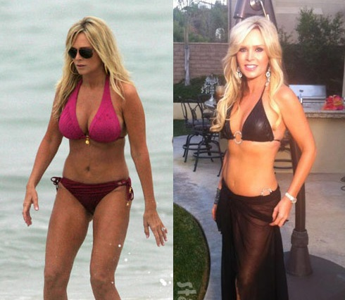Tamra Barney plastic surgery, Tamra Barney plastic surgery before after photos, Tamra Barney breast augmentation, breast implants, facial fillers, botox1