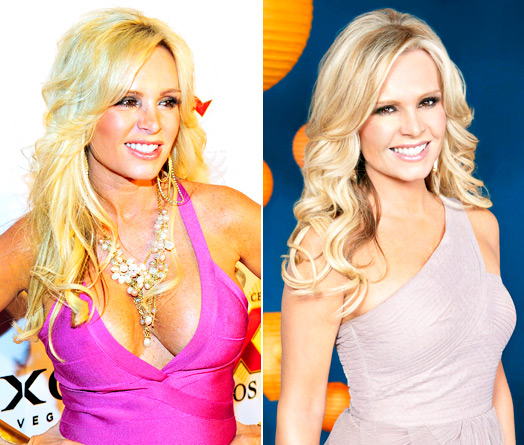 Tamra Barney plastic surgery, Tamra Barney plastic surgery before after photos, Tamra Barney breast augmentation, breast implants, facial fillers, botox2