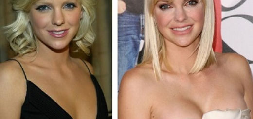 Anna Faris plastic surgery, Anna Faris plastic surgery before after photos, Anna Faris breast implants, nose job, lip injection, botox