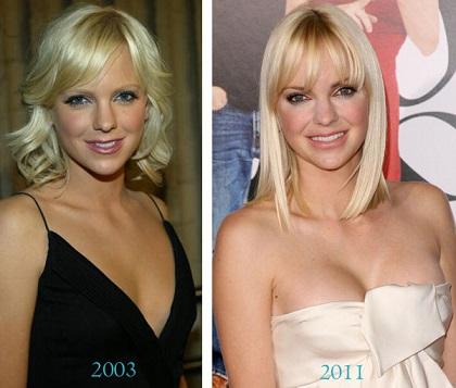 Anna Faris plastic surgery, Anna Faris plastic surgery before after photos, Anna Faris breast implants, nose job, lip injection, botox