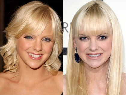 Anna Faris plastic surgery, Anna Faris plastic surgery before after photos, Anna Faris breast implants, nose job, lip injection, botox2