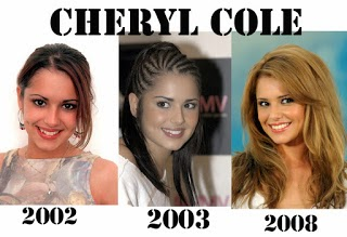 Cheryl Cole plastic surgery, Cheryl Cole plastic surgery before after photos, Cheryl Cole breast implants, nose job, botox, teeth veneers1