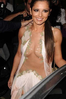 Cheryl Cole plastic surgery, Cheryl Cole plastic surgery before after photos, Cheryl Cole breast implants, nose job, botox, teeth veneers2