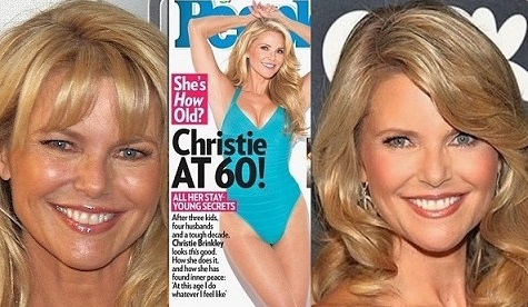 Christie Brinkley plastic surgery, Christie Brinkley plastic surgery before after photos, has Christie Brinkley had plastic surgery