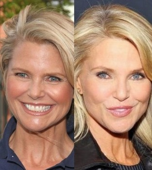 Christie Brinkley plastic surgery, Christie Brinkley plastic surgery before after photos, has Christie Brinkley had plastic surgery1