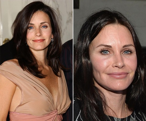 Courteney Cox plastic surgery, Courteney Cox plastic surgery before after photos, Courteney Cox botox, Courteney Cox injections, fillers, breast implants2