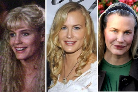 Daryl Hannah plastic surgery, Daryl Hannah plastic surgery before after photos, Daryl Hannah botox, has Daryl Hannah had plastic surgery, Daryl Hannah fillers1