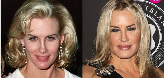 Daryl Hannah plastic surgery, Daryl Hannah plastic surgery before after photos, Daryl Hannah botox, has Daryl Hannah had plastic surgery, Daryl Hannah fillers4