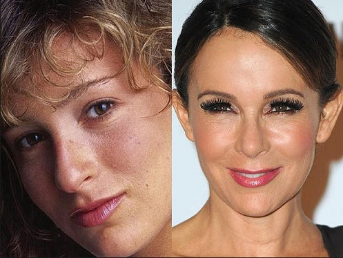 Jennifer Grey plastic surgery, Jennifer Grey then and now, Jennifer Grey pictures, Jennifer Grey plastic surgery before after photos, Jennifer Grey nose job, botox