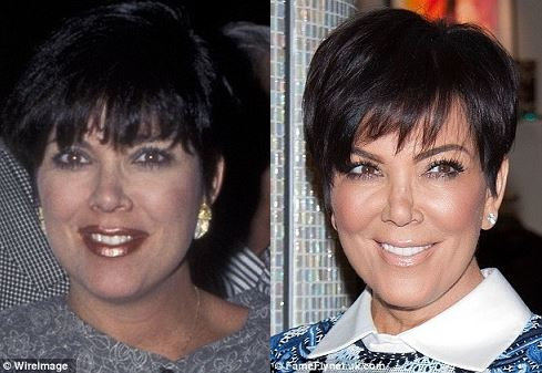 Kris Jenner plastic surgery, Kris Jenner plastic surgery before after photos, Kris Jenner breast implants, breast augmentation, face lift, chin implants, botox, facial fillers1