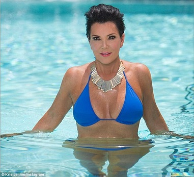 Kris Jenner plastic surgery, Kris Jenner plastic surgery before after photos, Kris Jenner breast implants, breast augmentation, face lift, chin implants, botox, facial fillers3