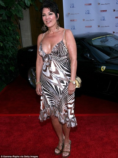 Kris Jenner plastic surgery, Kris Jenner plastic surgery before after photos, Kris Jenner breast implants, breast augmentation, face lift, chin implants, botox, facial fillers4