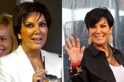 Kris Jenner plastic surgery, Kris Jenner plastic surgery before after photos, Kris Jenner breast implants, breast augmentation, face lift, chin implants, botox, facial fillers5