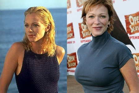 Lauren Holly plastic surgery, Lauren Holly plastic surgery before after, Lauren Holly boobs, Lauren Holly breast implants, breast augmentation, botox