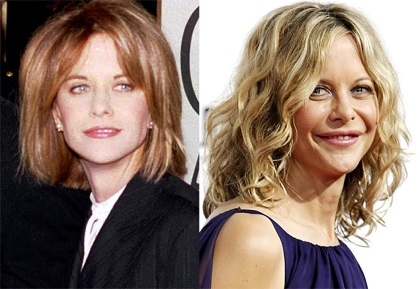 Meg Ryan plastic surgery, Meg Ryan plastic surgery disaster, Meg Ryan before and after, Meg Ryan botox, Meg Ryan pictures, Meg Ryan lip injection5