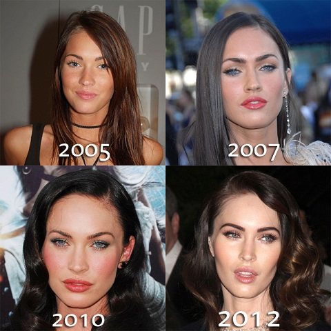 Megan Fox plastic surgery, Megan Fox plastic surgery before after photos, Megan Fox nose job, has Megan Fox had plastic surgery, lip injections, fillers