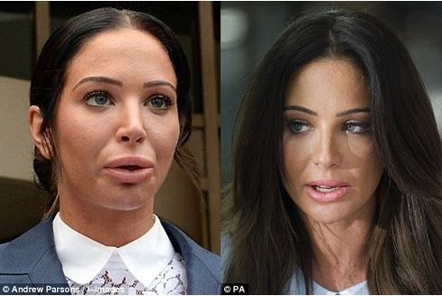 Tulisa Contostavlos plastic surgery, Tulisa Contostavlos plastic surgery before after photos, tulisa surgery, Tulisa Contostavlos lip fillers, cheek fillers, botox, nose job, weight loss4