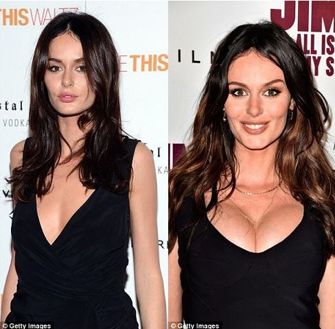 nicole trunfio plastic surgery, nicole trunfio plastic surgery before after photos, nicole trunfio breast augmentation, nicole trunfio breast implants, did nicole trunfio had a boob job