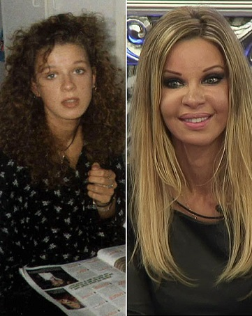 Alicia Douvall plastic surgery, Alicia Douvall plastic surgery before after photos, Alicia Douvall breast implants, Alicia Douvall breast augmentation, Alicia Douvall images, boobs job, cosmetic surgery