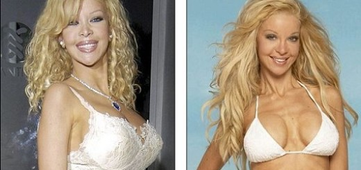 Alicia Douvall plastic surgery, Alicia Douvall plastic surgery before after photos, Alicia Douvall breast implants, Alicia Douvall breast augmentation, Alicia Douvall images, boobs job, cosmetic surgery6