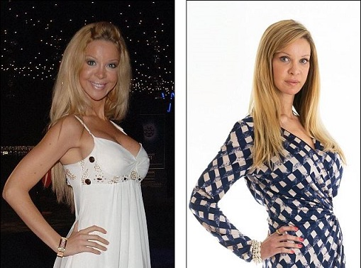 Alicia Douvall plastic surgery, Alicia Douvall plastic surgery before after photos, Alicia Douvall breast implants, Alicia Douvall breast augmentation, Alicia Douvall images, boobs job, cosmetic surgery7Alicia Douvall plastic surgery, Alicia Douvall plastic surgery before after photos, Alicia Douvall breast implants, Alicia Douvall breast augmentation, Alicia Douvall images, boobs job, cosmetic surgery7