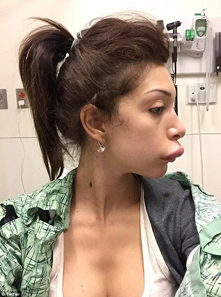 Farrah Abraham plastic surgery, Farrah Abraham plastic surgery gone wrong, Farrah Abraham lip injection, Farrah Abraham lip implants
