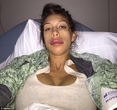 Farrah Abraham plastic surgery, Farrah Abraham plastic surgery gone wrong, Farrah Abraham lip injection, Farrah Abraham lip implants1