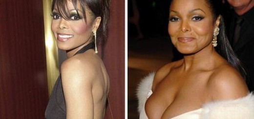 Janet Jackson plastic surgery, Janet Jackson plastic surgery before after photos, Janet Jackson breast augmentation, breast implants, facelift, nose job, botox, nose job