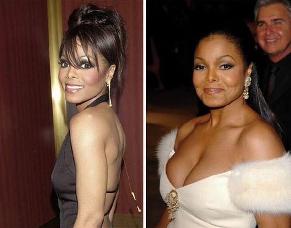 Janet Jackson plastic surgery, Janet Jackson plastic surgery before after photos, Janet Jackson breast augmentation, breast implants, facelift, nose job, botox, nose job
