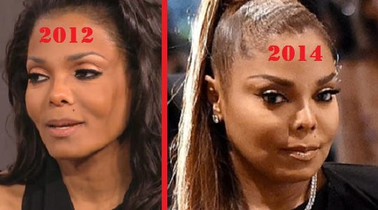 Janet Jackson plastic surgery, Janet Jackson plastic surgery before after photos, Janet Jackson breast augmentation, breast implants, facelift, nose job, botox, nose job2