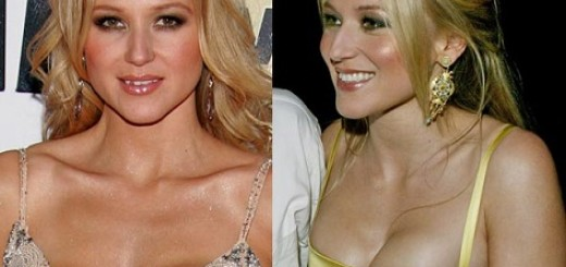 Jewel plastic surgery, Jewel plastic surgery before after photos, Jewel boobs job, Jewel breast implants, teeth fixture, breast augmentation4