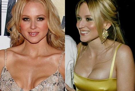 Jewel plastic surgery, Jewel plastic surgery before after photos, Jewel boobs job, Jewel breast implants, teeth fixture, breast augmentation4