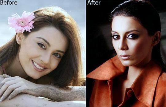 Minissha Lamba Plastic Surgery, Minissha Lamba Plastic Surgery Before And After Photos, Minissha Lamba breast augmentation, nose job, breast implants, Minissha Lamba pictures, Minissha Lamba images