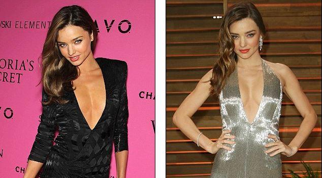 Top 7 Victoria's Secret Models Who've Had Plastic Surgery