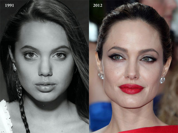 Angelina Jolie photos, Angelina Jolie plastic surgery, Angelina Jolie nose job, Angelina Jolie plastic surgery before after photos, Angelina Jolie images, Angelina Jolie botox, Angelina Jolie breast implants5