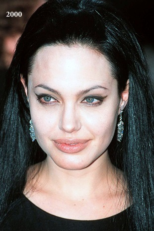 Angelina Jolie photos, Angelina Jolie plastic surgery, Angelina Jolie nose job, Angelina Jolie plastic surgery before after photos, Angelina Jolie images, Angelina Jolie botox, Angelina Jolie breast implants6