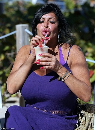 Big Ang Plastic Surgery, Big Ang Plastic Surgery before after, Big Ang breast implants, Big Ang breast augmentation, lip injection, botox, liposuction1