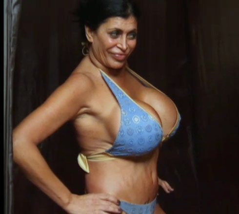 Big Ang Plastic Surgery, Big Ang Plastic Surgery before after, Big Ang breast implants, Big Ang breast augmentation, lip injection, botox, liposuction2